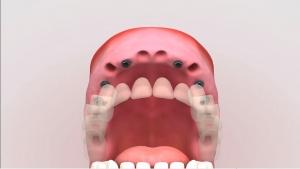 implantes dentales precios materiales