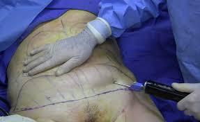 abdomen zona común realizar liposucción