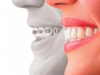 Cuanto cuesta la ortodoncia