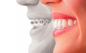 ortodoncia belleza salud bucodental