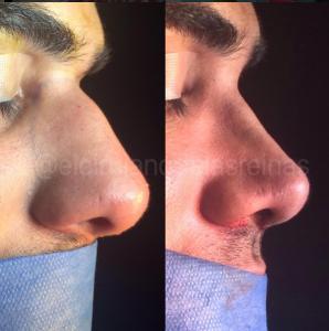 rinoplatia operacion estetica demanda