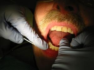 Limpiezas dentales recomendables una vez anyo