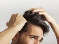 ¿Cuánto cuesta un implante de pelo?